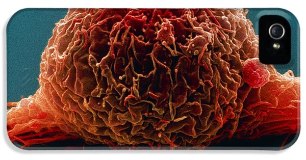 Malignancy iPhone 5 Cases - Bladder Cancer Cell, Sem iPhone 5 Case by Steve Gschmeissner
