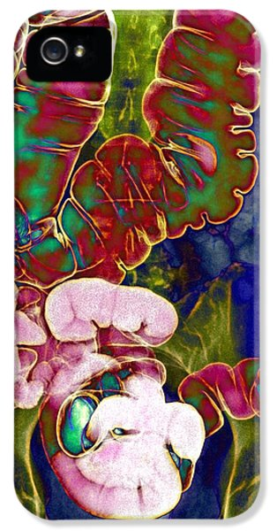 Coloured X-ray iPhone 5 Cases - Large Intestine, X-ray iPhone 5 Case by Du Cane Medical Imaging Ltd