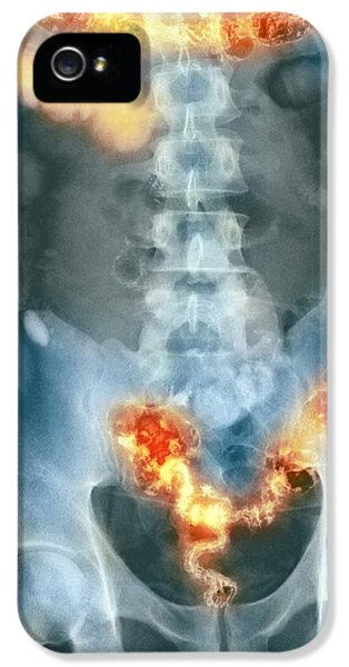 Ulcerative Colitis iPhone 5 Cases - Ulcerative Colitis, X-ray iPhone 5 Case by