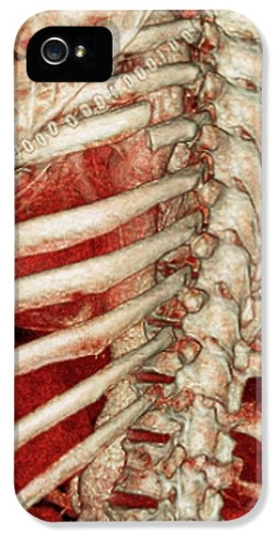 Aortic Aneurysm Ct Scan IPhone 5 / 5s Case by Zephyr