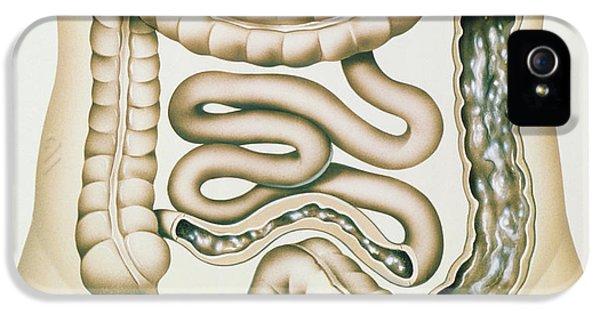 Ulcerative Colitis iPhone 5 Cases - Artwork Of Crohns Disease And Ulcerative Colitis iPhone 5 Case by John Bavosi