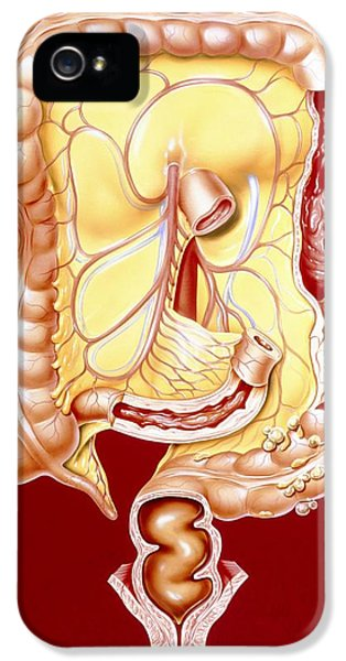 Ulcerative Colitis iPhone 5 Cases - Artwork Of Crohns Disease, Colitis, Colon Cancer iPhone 5 Case by John Bavosi