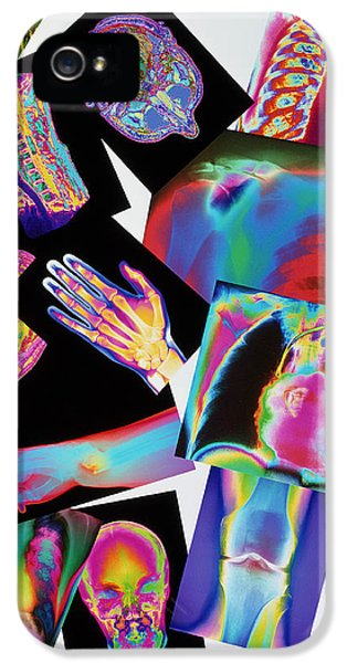 Radiology iPhone 5 Cases - Assortment Of Coloured X-rays And Body Scans iPhone 5 Case by Mehau Kulyk