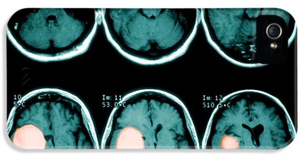 Benign iPhone 5 Cases - Brain Tumor iPhone 5 Case by Medical Body Scans