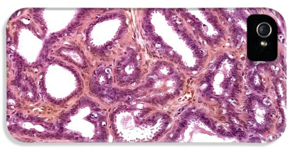 Inflammation iPhone 5 Cases - Breast Inflammation, Light Micrograph iPhone 5 Case by Steve Gschmeissner