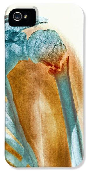 Broken Upper Arm Bone, X-ray IPhone 5 / 5s Case by