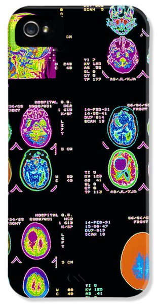 Diagnostic iPhone 5 Cases - Coloured Ct Scans Of The Brain iPhone 5 Case by Mehau Kulyk