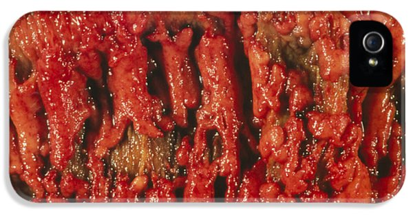 Ulcerative Colitis iPhone 5 Cases - Excised Human Colon Showing Ulcerative Colitis iPhone 5 Case by Dr. E. Walker