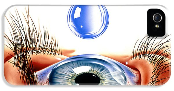 Inflamed iPhone 5 Cases - Eye With Conjunctivitis iPhone 5 Case by John Bavosi