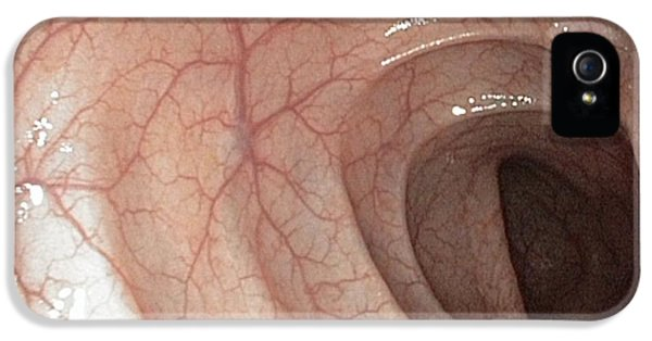 Colonoscope iPhone 5 Cases - Healthy Colon, Large Intestine iPhone 5 Case by Gastrolab