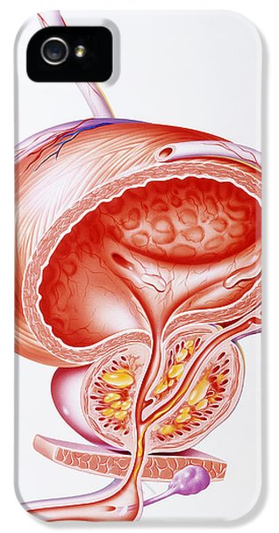Inflamed iPhone 5 Cases - Illustration Showing Inflamed Prostate Gland iPhone 5 Case by John Bavosi