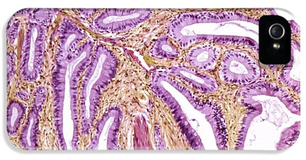 Inflamed iPhone 5 Cases - Inflamed Gall Bladder, Light Micrograph iPhone 5 Case by Steve Gschmeissner