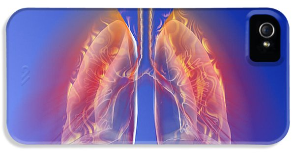Inflamed iPhone 5 Cases - Inflamed Lungs iPhone 5 Case by Pasieka