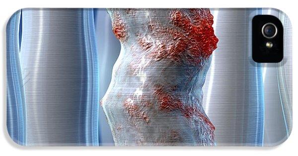 Inflammatory Disease iPhone 5 Cases - Inflammatory Bowel Disease, Artwork iPhone 5 Case by David Mack
