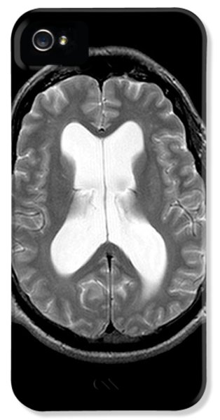 Dementia iPhone 5 Cases - Mri Communicating Hydrocephalus Nph iPhone 5 Case by Medical Body Scans