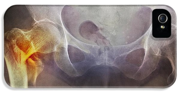 Coloured X-ray iPhone 5 Cases - neck Of Femur Fracture, X-ray iPhone 5 Case by Du Cane Medical Imaging Ltd