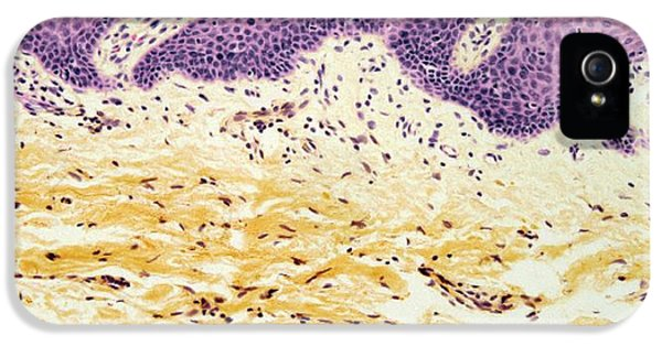 Non-cancerous iPhone 5 Cases - Neurofibroma, Light Micrograph iPhone 5 Case by Steve Gschmeissner