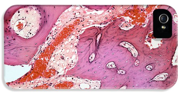 Non-cancerous iPhone 5 Cases - Osteoid Osteoma, Light Micrograph iPhone 5 Case by Steve Gschmeissner