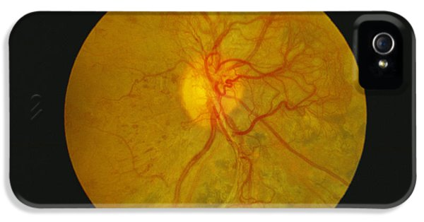 Diagnostic iPhone 5 Cases - Retina Damage In Diabetes iPhone 5 Case by Paul Parker