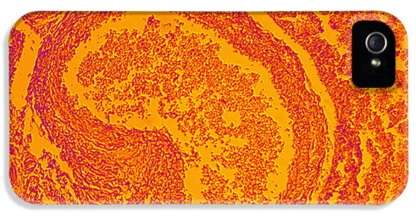 Infection iPhone 5 Cases - The Effects Of Hiv On Human Lung Tissue iPhone 5 Case by Ted Kinsman