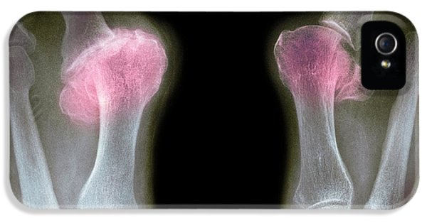 Coloured X-ray iPhone 5 Cases - X-ray Of Bunions On The Toes iPhone 5 Case by Mike Devlin