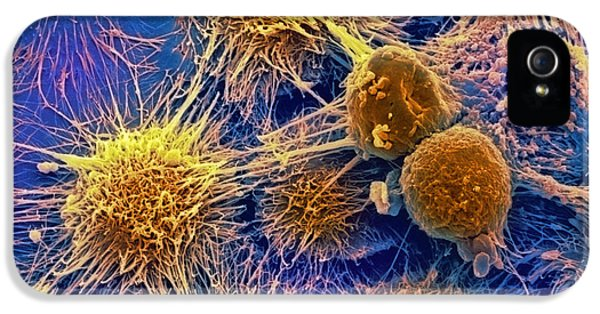 Malignancy iPhone 5 Cases - Kidney Cancer Cells, Sem iPhone 5 Case by David Mccarthy