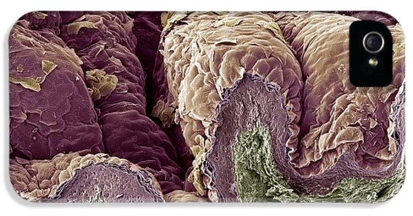 Scanning Electron Microscope iPhone 5 Cases - Skin Tissue, Sem iPhone 5 Case by Steve Gschmeissner