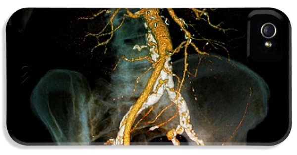 Inflammation iPhone 5 Cases - Arteritis, 3d Ct Scan iPhone 5 Case by Zephyr