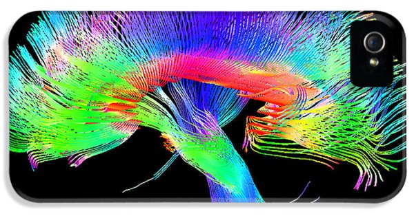 Human Body iPhone 5 Cases - Brain Pathways iPhone 5 Case by Tom Barrick, Chris Clark, Sghms