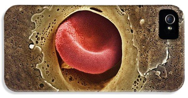 Scanning Electron Microscope iPhone 5 Cases - Capillary, Sem iPhone 5 Case by Thomas Deerinck, Ncmir