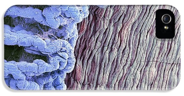 Scanning Electron Microscope iPhone 5 Cases - Eye Anatomy, Sem iPhone 5 Case by Steve Gschmeissner