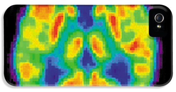 Pet Scan Of 20-year-old Brain IPhone 5 / 5s Case by Science Source