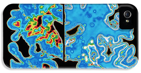 Dementia iPhone 5 Cases - Sectioned Brains: Alzheimers Disease Vs Normal iPhone 5 Case by Pasieka