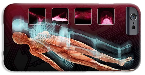 3-d iPhone Cases - 3d Hospital Scan, Conceptual Artwork iPhone Case by Victor Habbick Visions