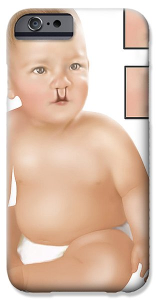 Lips iPhone Cases - Baby With Cleft Palate iPhone Case by Gwen Shockey