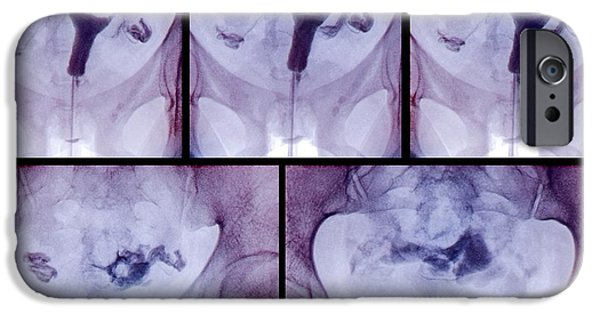 Disorder iPhone Cases - Blocked Fallopian Tubes, X-rays iPhone Case by Zephyr