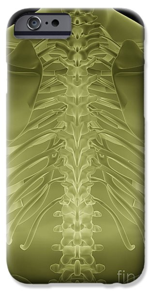 Model iPhone Cases - Bones Of The Upper Body iPhone Case by Science Picture Co