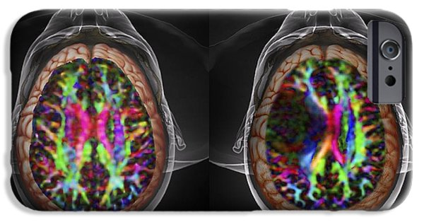 Abnormal iPhone Cases - Brain Cancer, Dti And 3d Ct Scans iPhone Case by Zephyr
