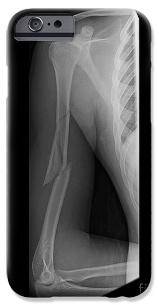 Disorder iPhone Cases - Broken Arm Bone, Digital X-ray iPhone Case by Du Cane Medical Imaging Ltd.