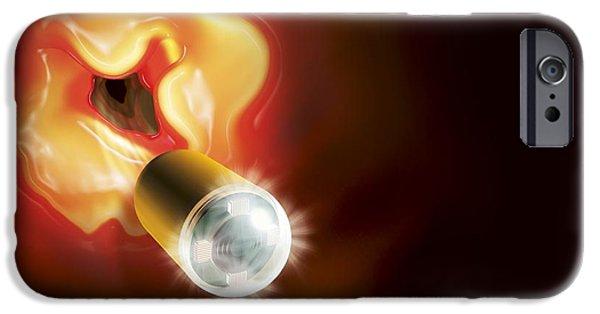 Endoscope iPhone Cases - Capsule Endoscopes, Conceptual Image iPhone Case by Claus Lunau