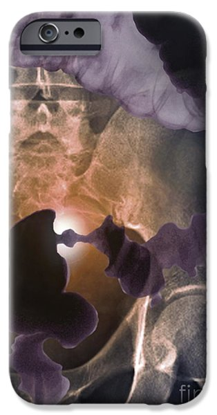 Sigmoid Colon iPhone Cases - Colon Cancer, Barium X-ray iPhone Case by Zephyr