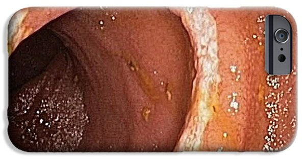 Endoscopy iPhone Cases - Crohns Disease, Endoscopic View iPhone Case by Gastrolab