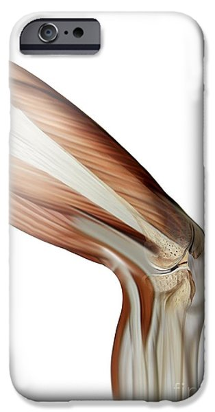 Torn iPhone Cases - Damaged Knee Ligament, Artwork iPhone Case by Claus Lunau