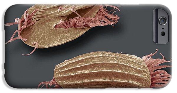 Protozoa iPhone Cases - Euplotes Protozoa, Sem iPhone Case by Steve Gschmeissner