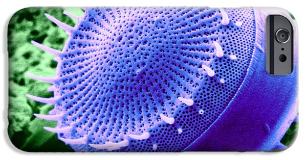 Phytoplankton iPhone Cases - Freshwater Diatom, Sem iPhone Case by Asa Thoresen