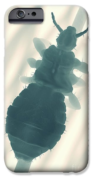 Gray Hair iPhone Cases - Head Louse iPhone Case by Science Picture Co