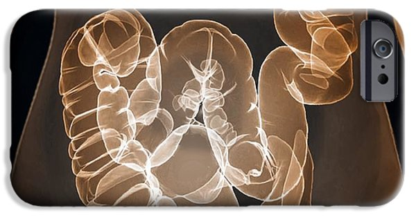 Large Intestine iPhone Cases - Healthy Large Intestine, 3d Ct Scan iPhone Case by Zephyr