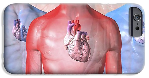 Abnormal iPhone Cases - Heart Failure, Artwork iPhone Case by David Mack
