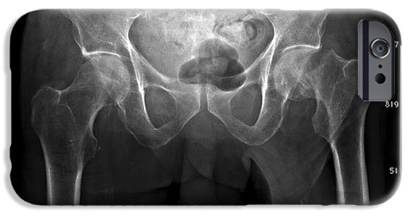 Disorder iPhone Cases - Hip Fracture, Digital X-ray iPhone Case by Du Cane Medical Imaging Ltd.