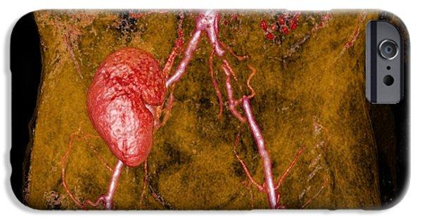 3-d iPhone Cases - Iliac Artery Stenosis, 3-d Mri Scan iPhone Case by Du Cane Medical Imaging Ltd.